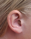 Image of a person wearing a completely in canal hearing aid