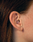 image of a person wearing an open fitting behind the ear hearing aid